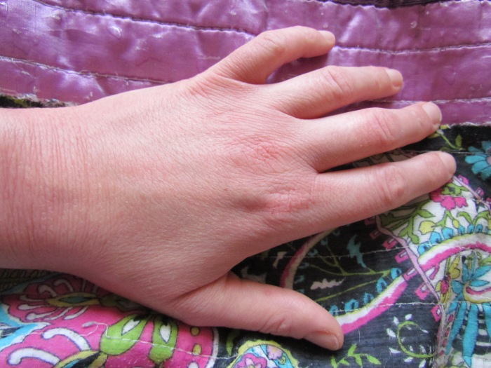 Nurses hands 006